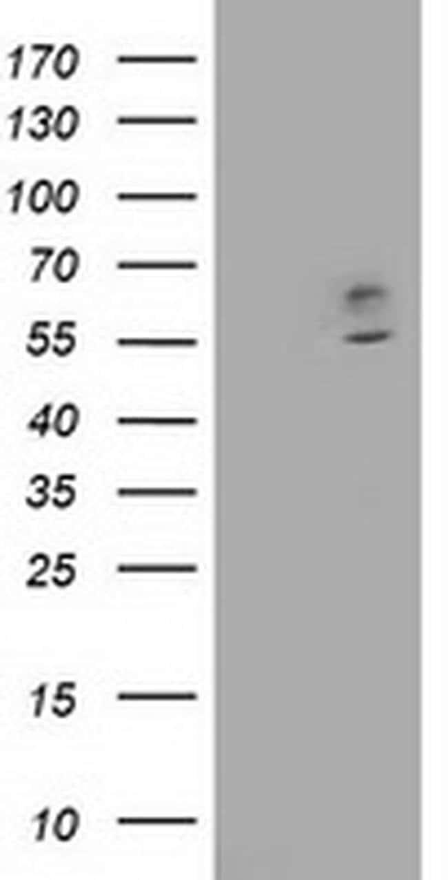 CNDP1 Mouse anti-Human, Clone: OTI2D2, liquid, TrueMAB  100 µL; Unconjugated