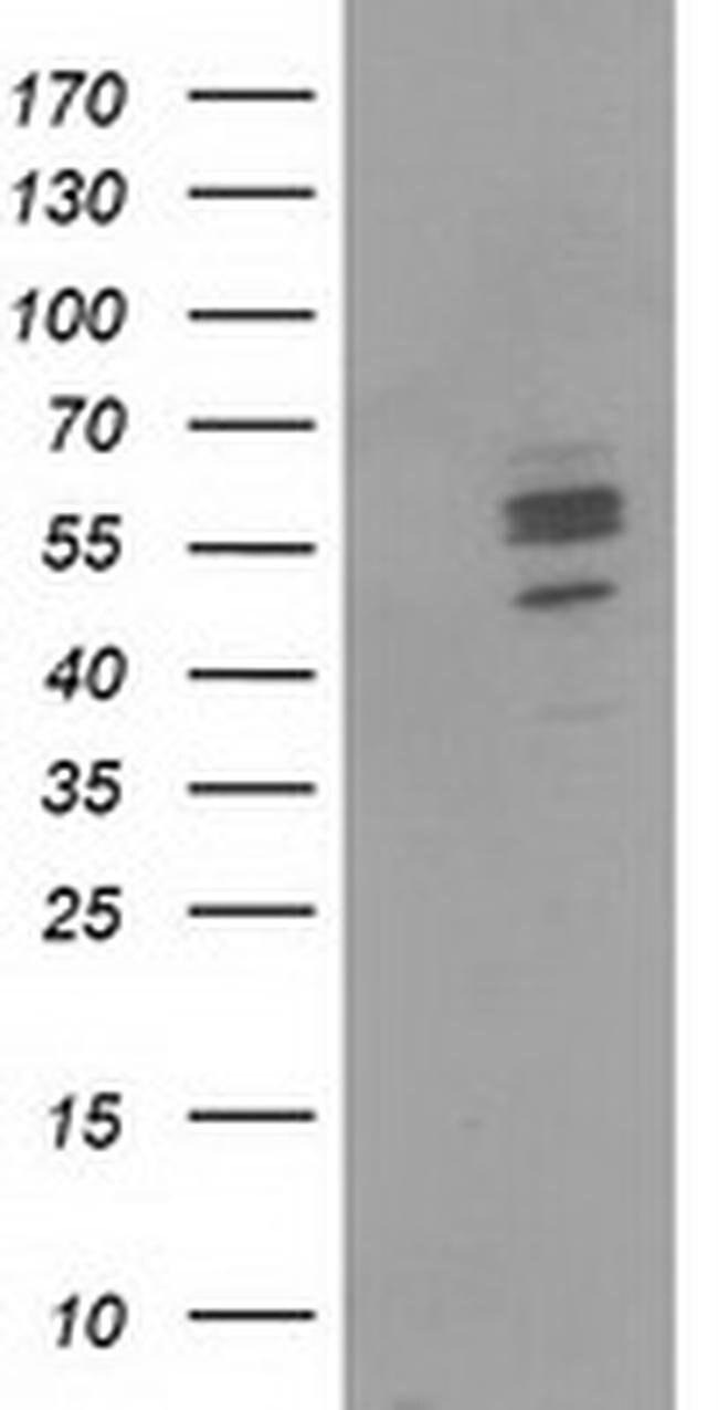 CNDP1 Mouse anti-Human, Clone: OTI1A5, liquid, TrueMAB  100 µL; Unconjugated