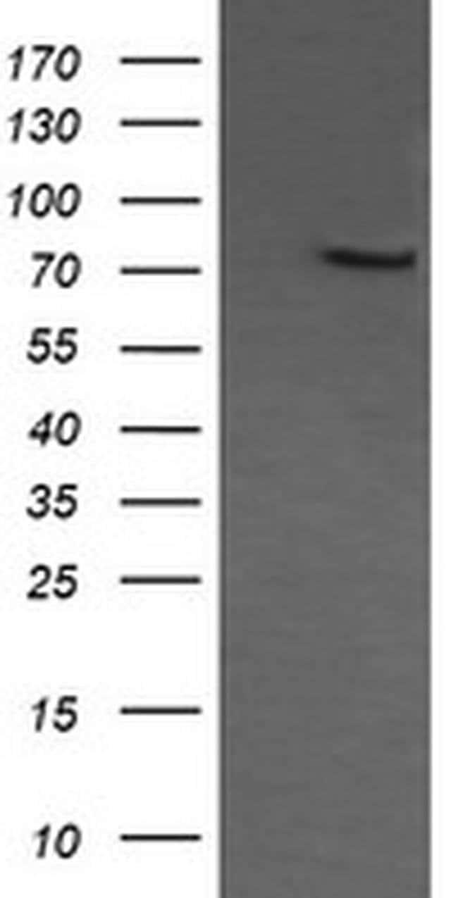 COG6 Mouse anti-Human, Clone: OTI1B8, liquid, TrueMAB  100 µL; Unconjugated