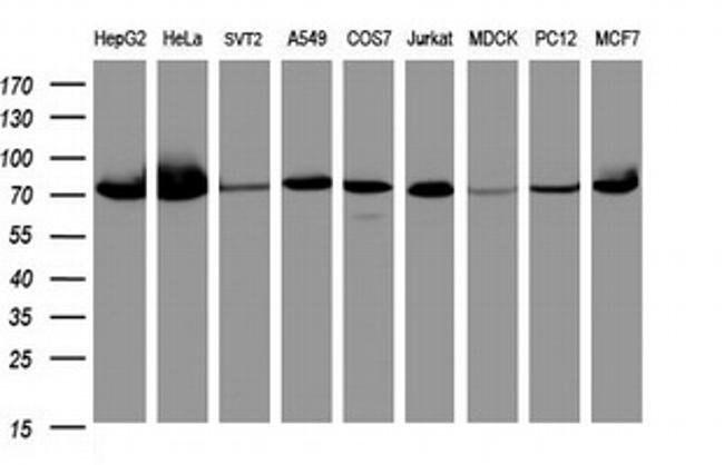 COG6 Mouse anti-Human, Clone: OTI3C8, liquid, TrueMAB  100 µL; Unconjugated