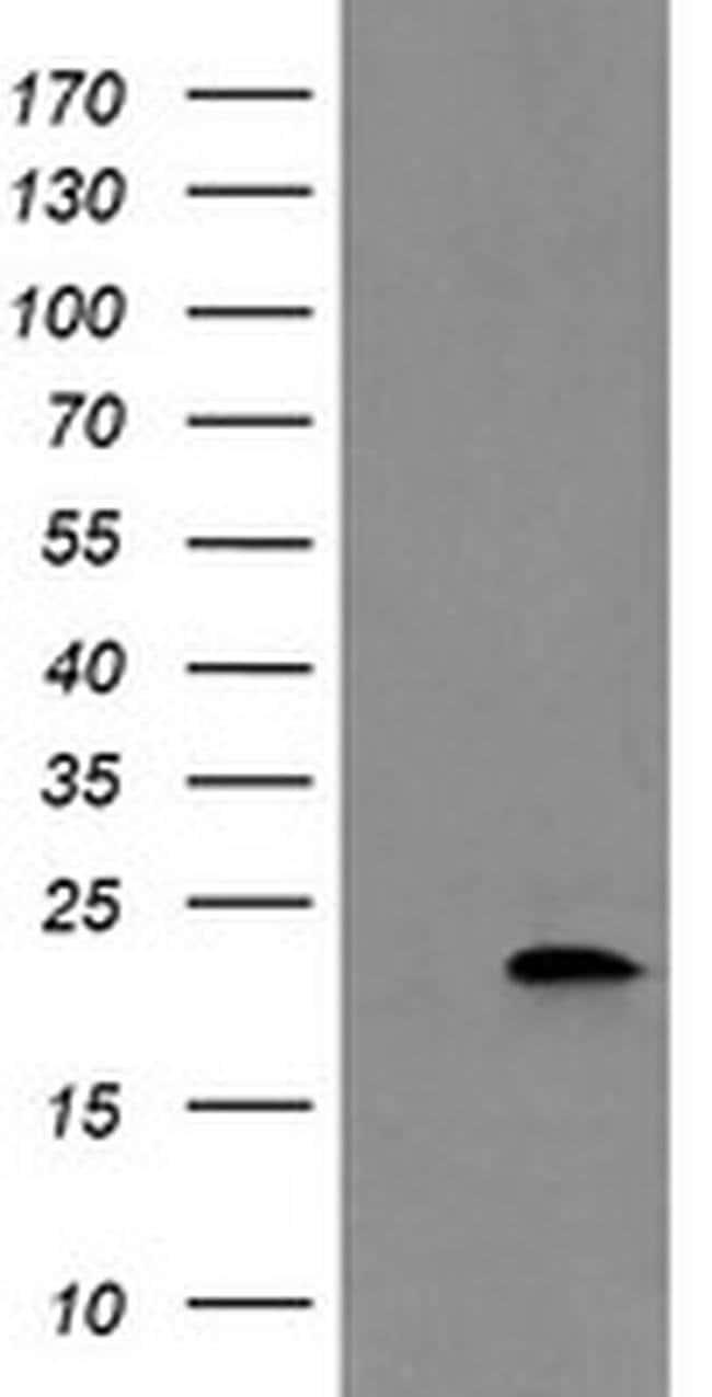 COMMD1 Mouse anti-Human, Clone: OTI3B3, liquid, TrueMAB  30 µL; Unconjugated