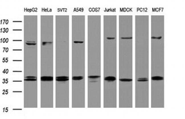 COPS6 Mouse anti-Human, Clone: OTI2F5, liquid, TrueMAB  100 µL; Unconjugated