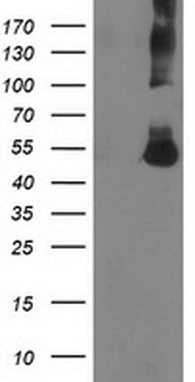 CORO1A Mouse anti-Human, Clone: OTI1A5, liquid, TrueMAB  30 µL; Unconjugated