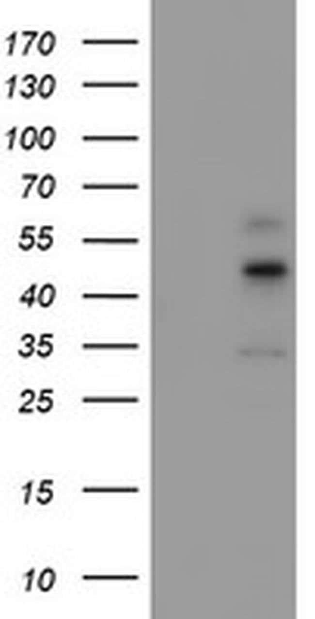 CPA1 (Carboxypeptidase A1) Mouse anti-Human, Clone: OTI1C1, liquid, TrueMAB