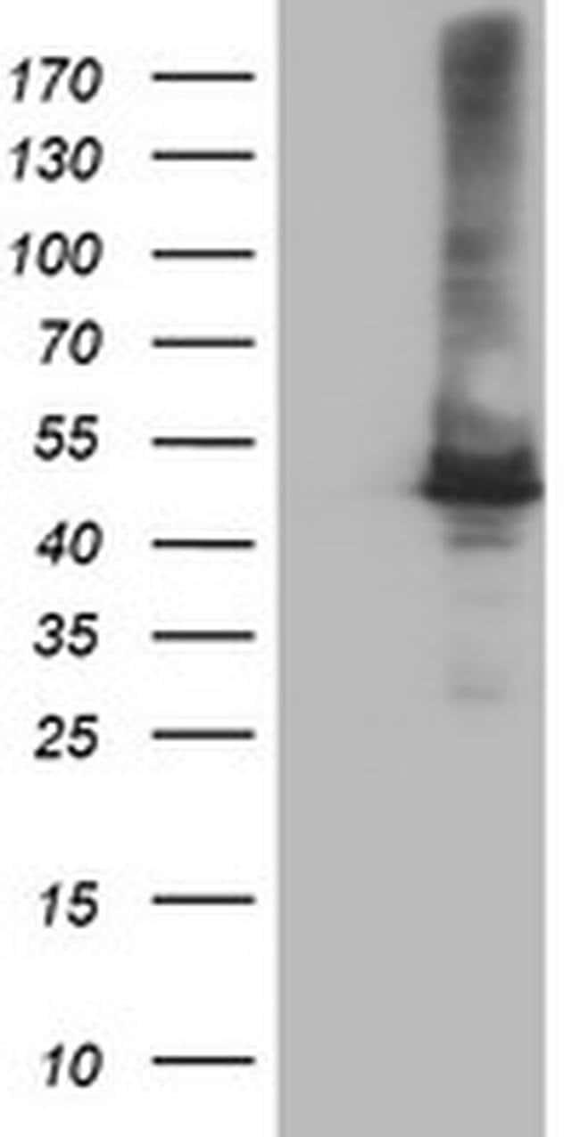 CPA1 (Carboxypeptidase A1) Mouse anti-Human, Clone: OTI1C12, liquid, TrueMAB