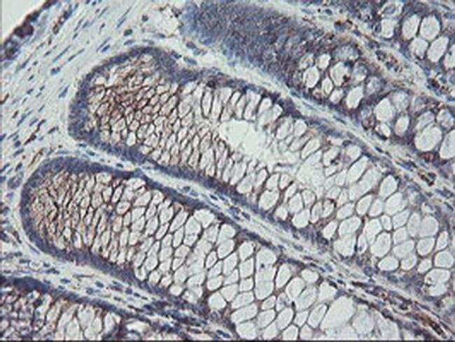 CPA2 Mouse anti-Human, Clone: OTI1C7, liquid, TrueMAB  100 µL; Unconjugated