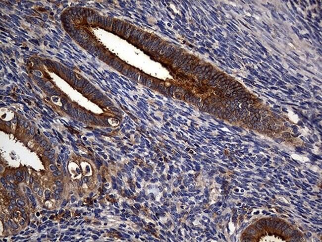 CPM Mouse anti-Human, Clone: OTI4E11, lyophilized, TrueMAB  100 µg;