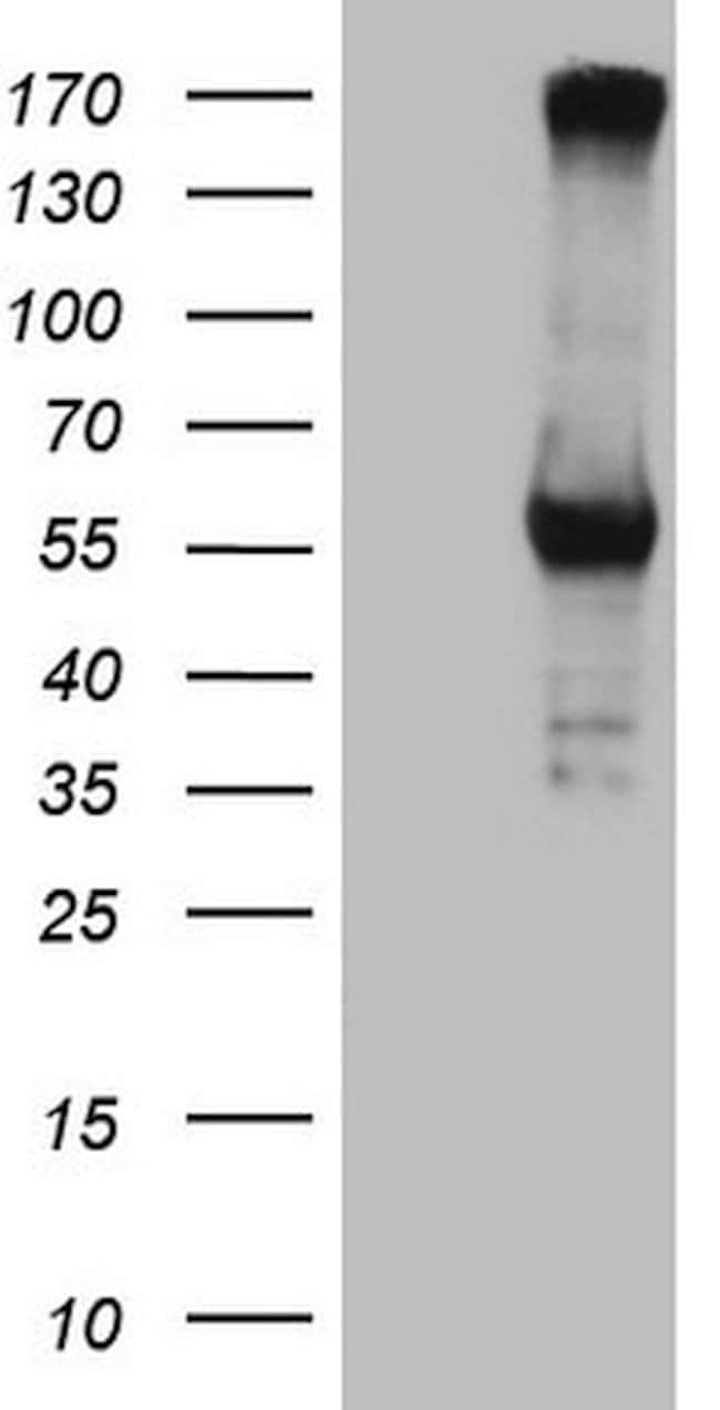 CPM Mouse anti-Human, Clone: OTI7C1, lyophilized, TrueMAB  100 µg;