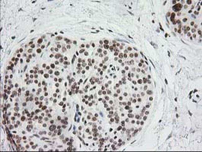CRY2 Mouse anti-Human, Clone: OTI1H5, liquid, TrueMAB  100 µL; Unconjugated