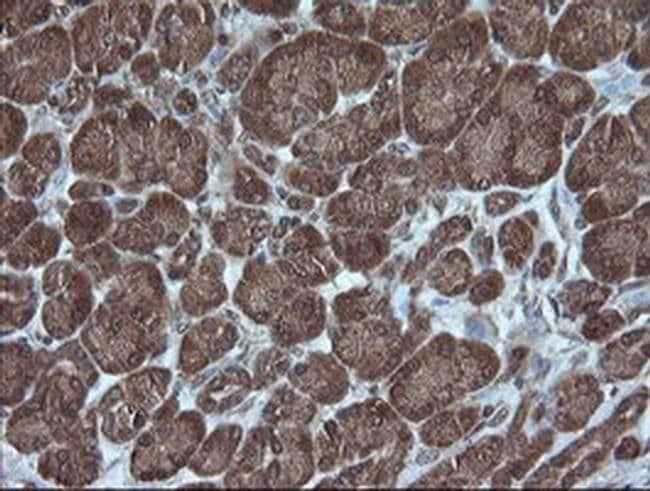 CRYAA Mouse anti-Human, Clone: OTI3B12, liquid, TrueMAB  100 µL; Unconjugated