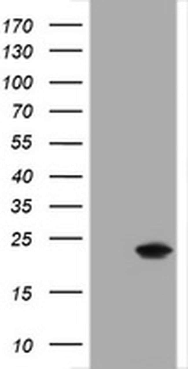 CRYAA Mouse anti-Human, Clone: OTI2H2, liquid, TrueMAB  100 µL; Unconjugated