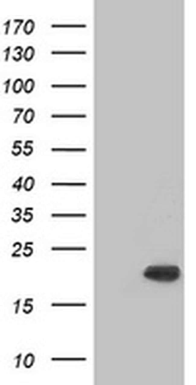 CRYAB Mouse anti-Human, Clone: OTI5D8, liquid, TrueMAB  100 µL; Unconjugated