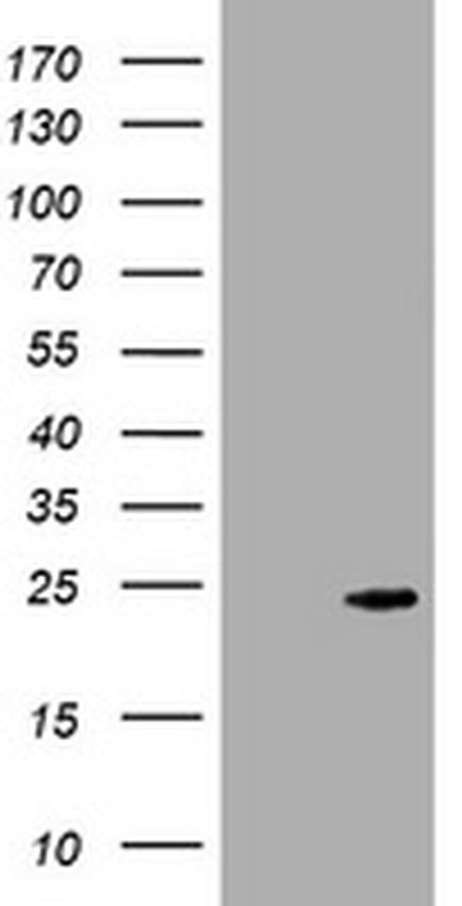 CRYGC Mouse anti-Human, Clone: OTI1E3, liquid, TrueMAB  100 µL; Unconjugated