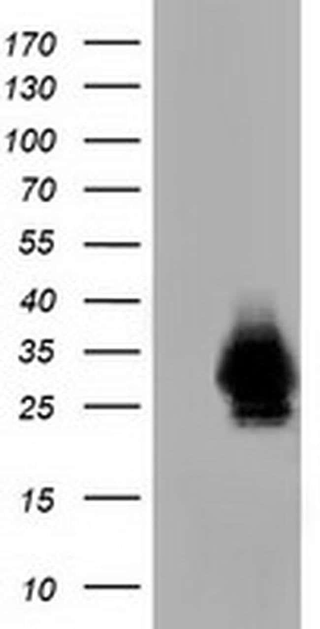 CRYM Mouse anti-Human, Rat, Clone: OTI1G7, liquid, TrueMAB  100 µL;