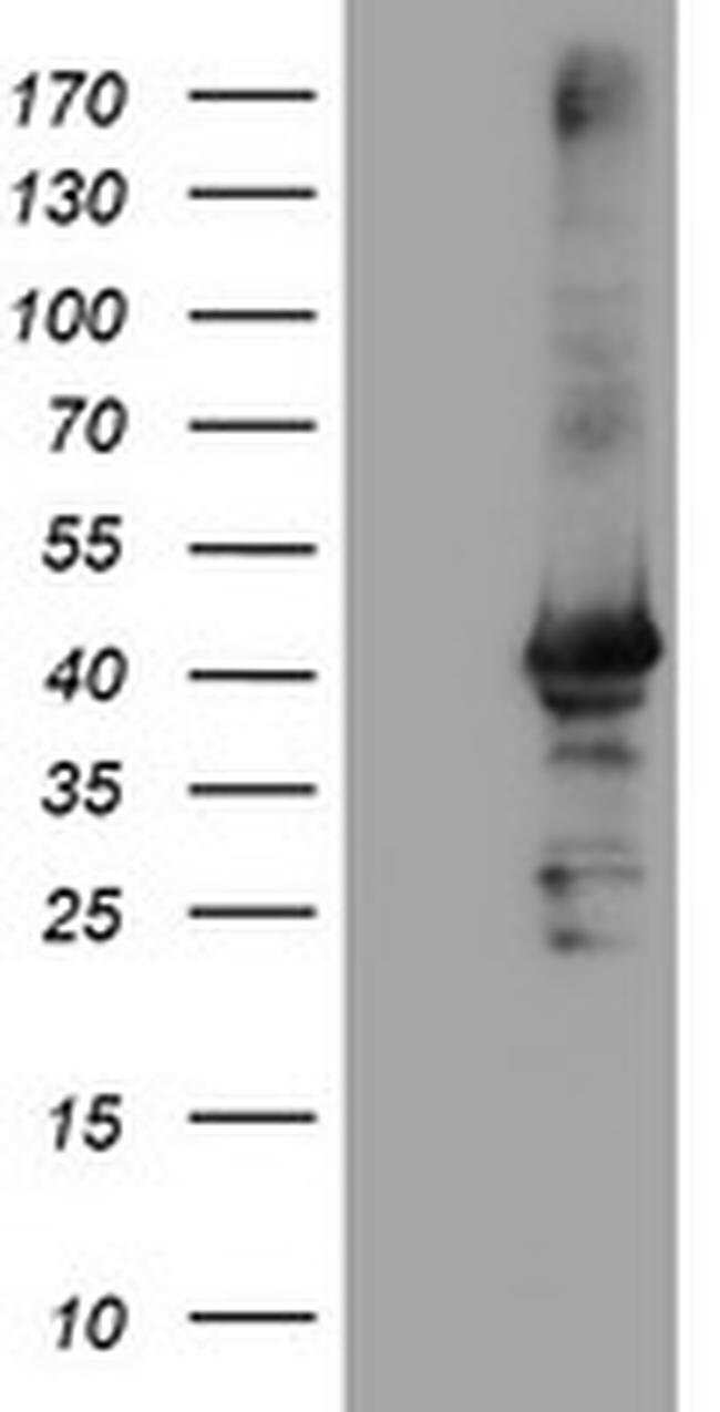 CRYZL1 Mouse anti-Human, Clone: OTI1B3, liquid, TrueMAB  100 µL; Unconjugated
