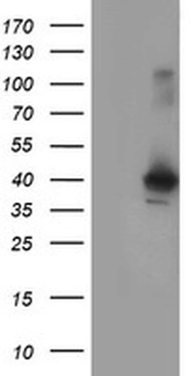 CRYZL1 Mouse anti-Human, Clone: OTI2C3, liquid, TrueMAB  100 µL; Unconjugated