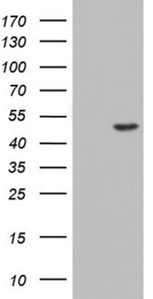 CSNK1G2 Mouse anti-Human, Clone: OTI4H3, lyophilized, TrueMAB  100 µg;