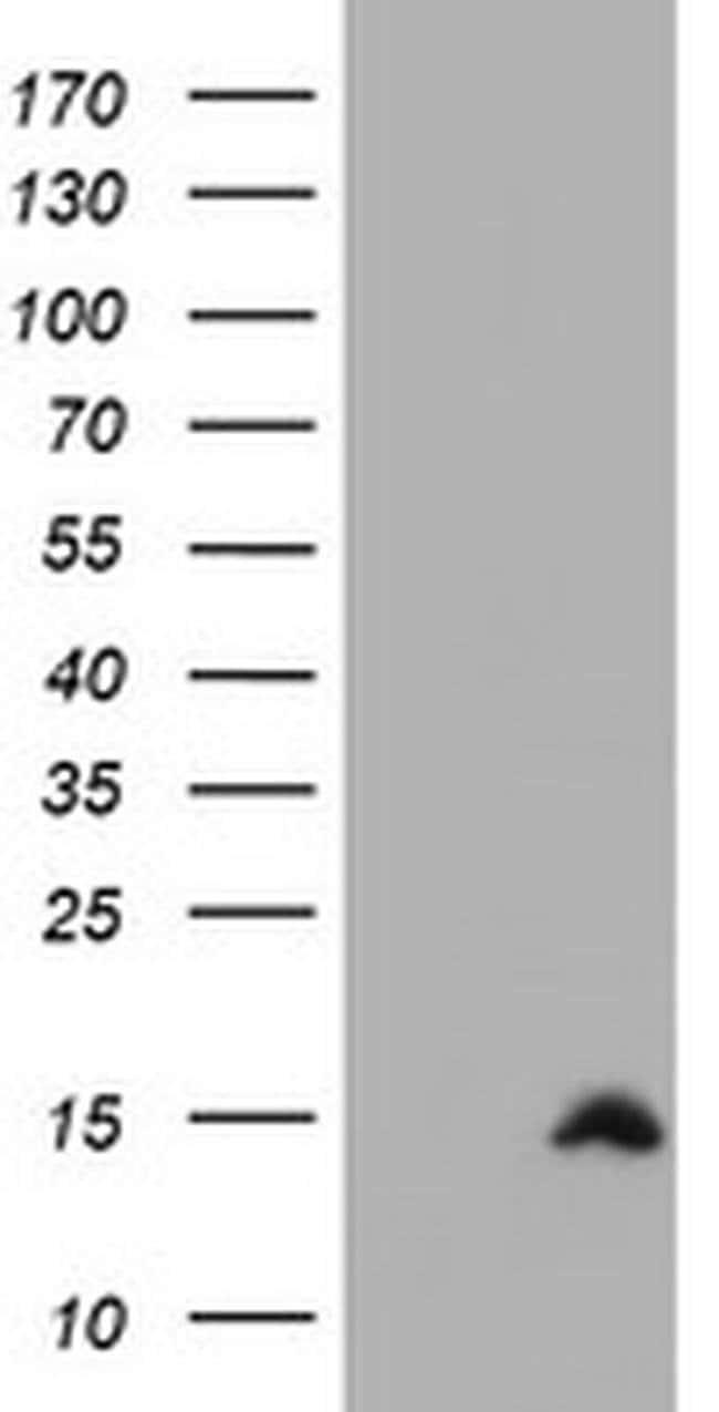 CST2 Mouse anti-Human, Clone: OTI1H8, liquid, TrueMAB  100 µL; Unconjugated