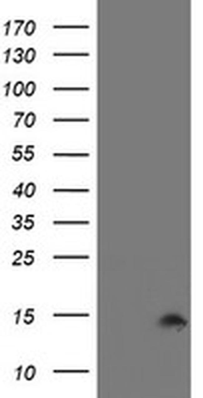 CST2 Mouse anti-Human, Clone: OTI2D6, liquid, TrueMAB  100 µL; Unconjugated
