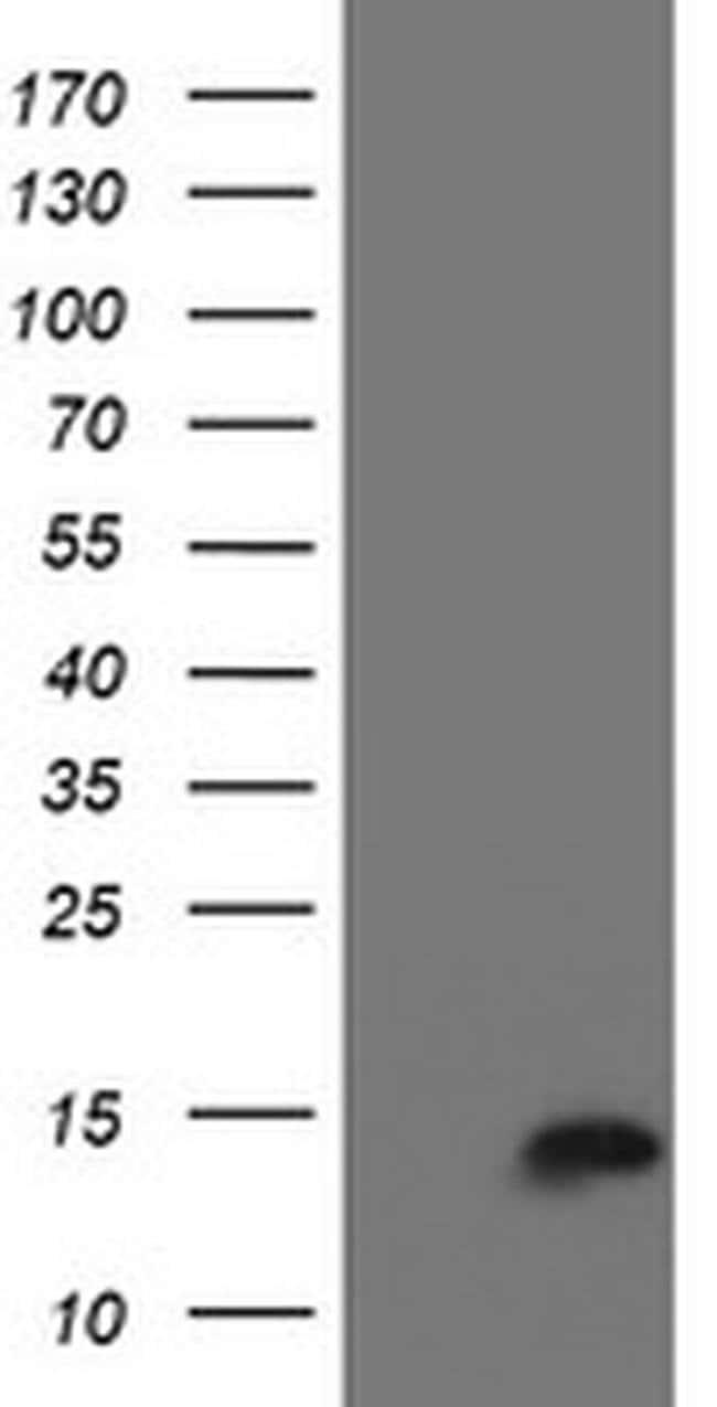 CST3 Mouse anti-Human, Clone: OTI2C8, liquid, TrueMAB  100 µL; Unconjugated