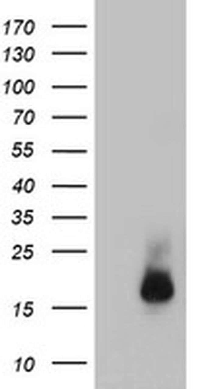CST3 Mouse anti-Human, Clone: OTI7B8, liquid, TrueMAB  100 µL; Unconjugated