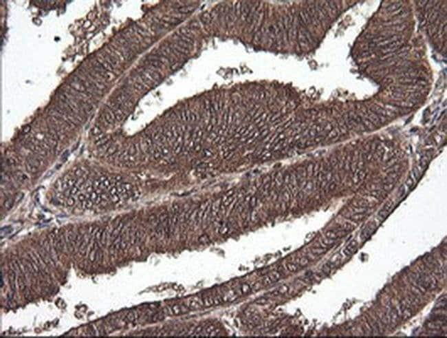 CTAG1B Mouse anti-Human, Clone: OTI5B2, liquid, TrueMAB  100 µL; Unconjugated