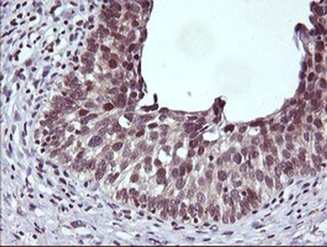 CTAG1B Mouse anti-Human, Clone: OTI5A5, liquid, TrueMAB  100 µL; Unconjugated
