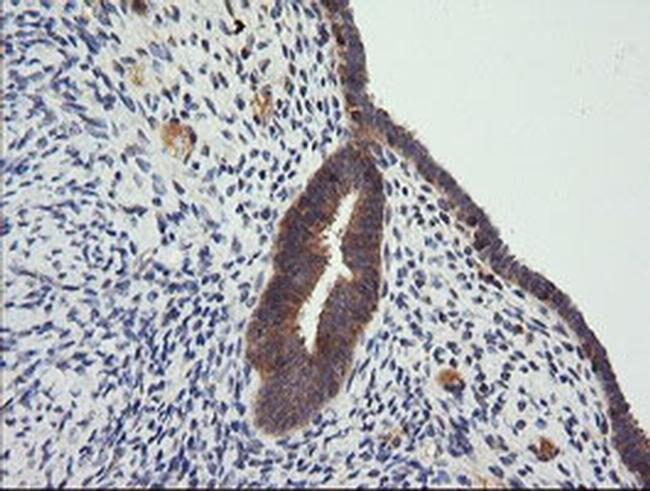 CTAG1B Mouse anti-Human, Clone: OTI5H4, liquid, TrueMAB  100 µL; Unconjugated