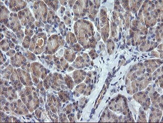 CTAG1B Mouse anti-Human, Clone: OTI3H8, liquid, TrueMAB  100 µL; Unconjugated