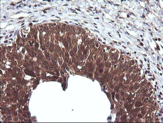 CTAG1B Mouse anti-Human, Clone: OTI4C12, liquid, TrueMAB  100 µL;