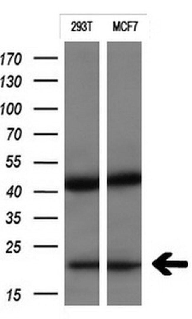 CTAG1B Mouse anti-Human, Clone: OTI1G9, liquid, TrueMAB  100 µL; Unconjugated