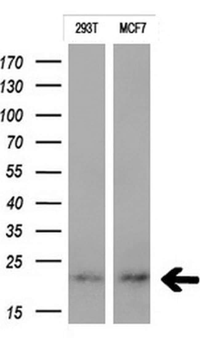 CTAG1B Mouse anti-Human, Clone: OTI4G7, liquid, TrueMAB  100 µL; Unconjugated