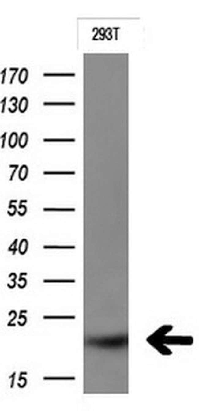 CTAG1B Mouse anti-Human, Clone: OTI2A10, liquid, TrueMAB  100 µL;