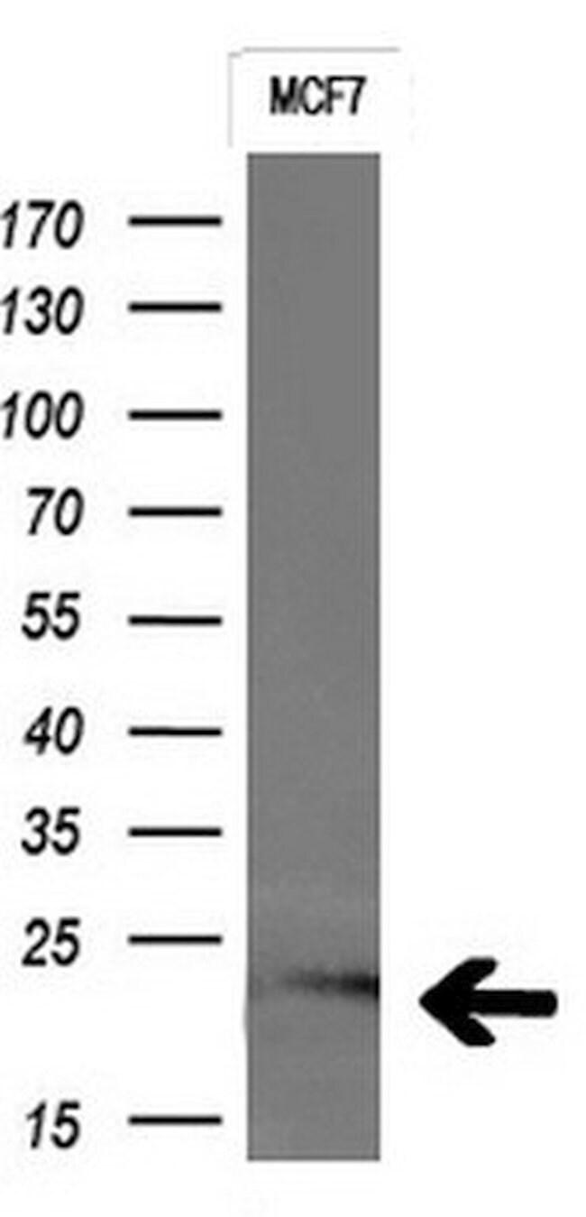 CTAG1B Mouse anti-Human, Clone: OTI4B6, liquid, TrueMAB  100 µL; Unconjugated