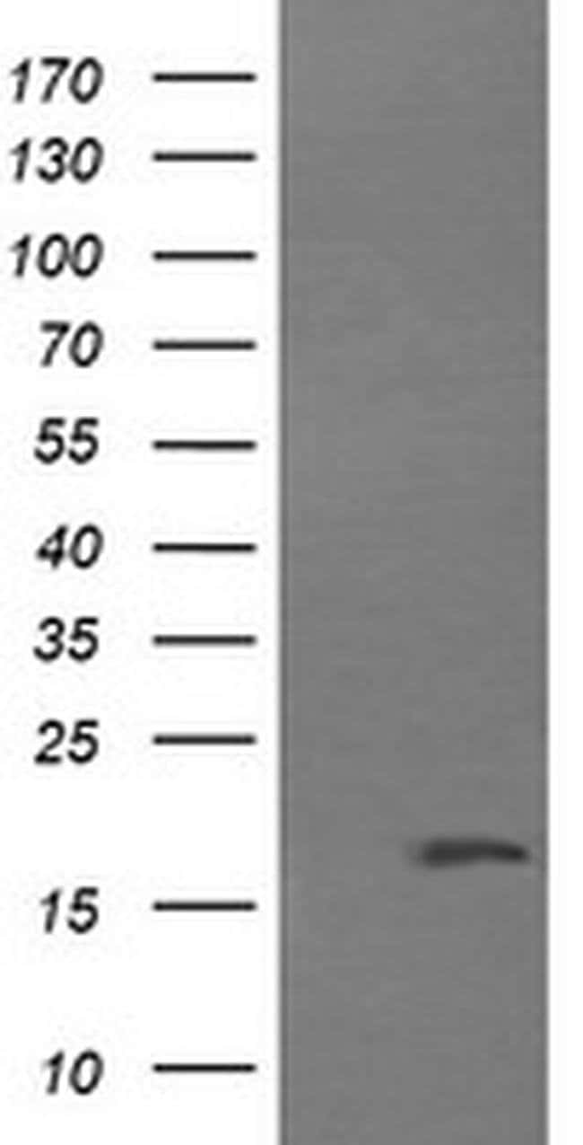 CTAG1B Mouse anti-Human, Clone: OTI4F1, liquid, TrueMAB  100 µL; Unconjugated