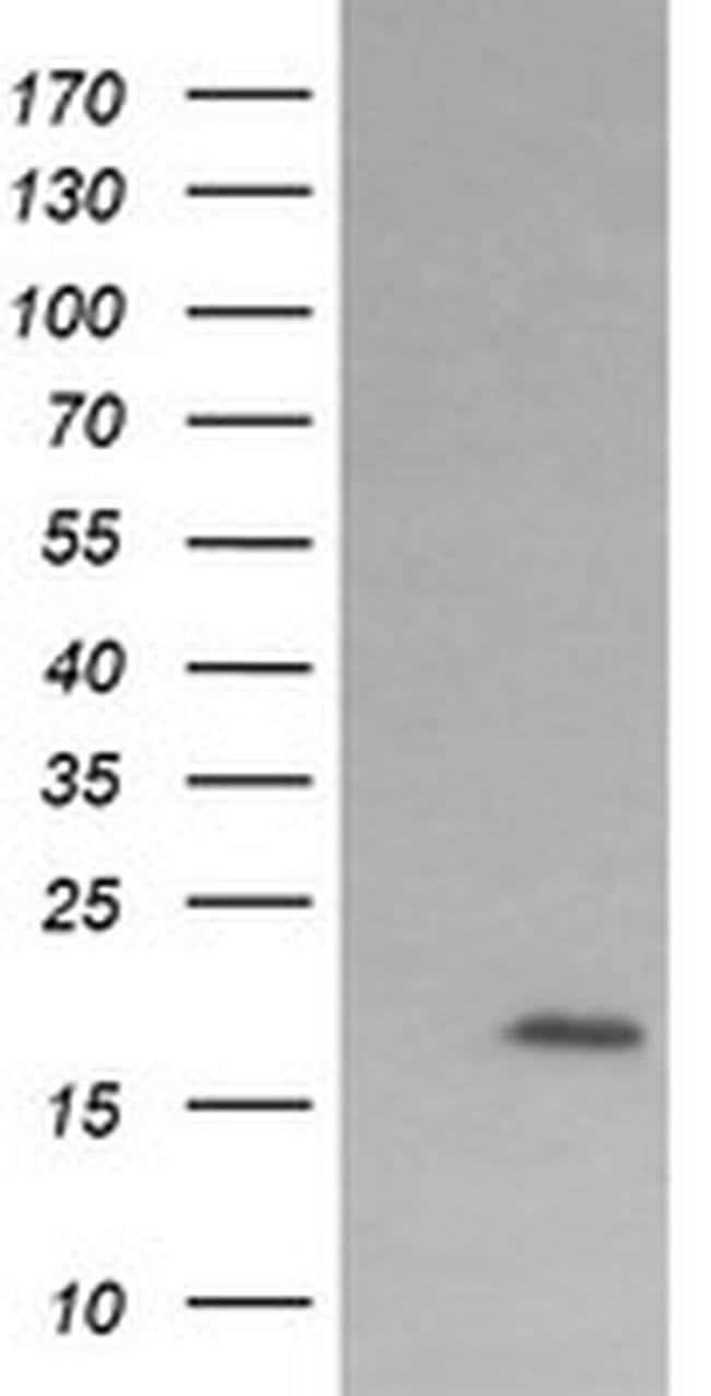 CTAG1B Mouse anti-Human, Clone: OTI9E7, liquid, TrueMAB  100 µL; Unconjugated