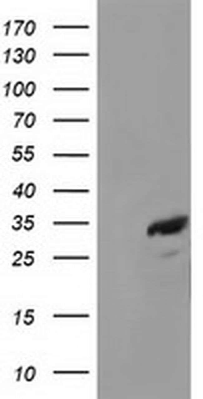 CTDSP1 Mouse anti-Human, Clone: OTI1C3, liquid, TrueMAB  100 µL; Unconjugated