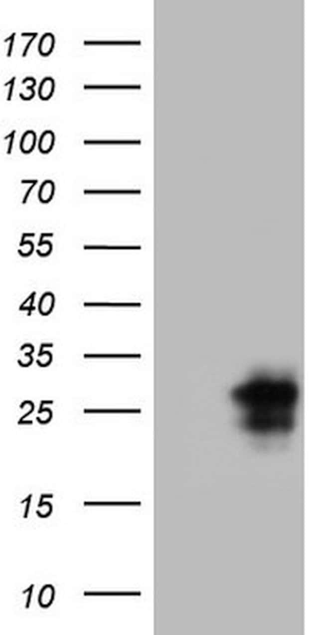 CTLA4 Mouse anti-Human, Clone: OTI8D12, lyophilized, TrueMAB  100 µg;