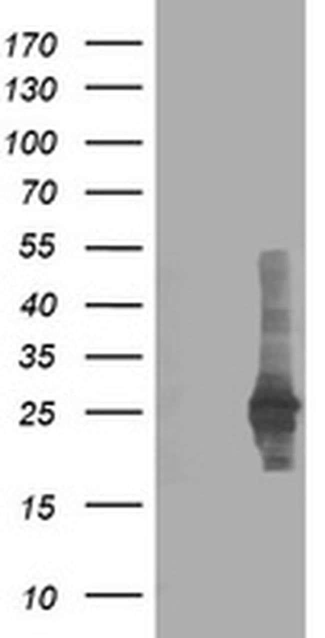 CXorf26 Mouse anti-Human, Clone: OTI1F3, liquid, TrueMAB  100 µL;