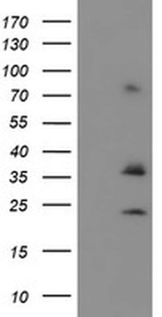 CYB5R1 Mouse anti-Human, Clone: OTI5G9, liquid, TrueMAB  100 µL; Unconjugated