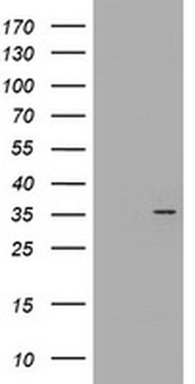 CYB5R1 Mouse anti-Canine, Human, Rat, Clone: OTI2D10, liquid, TrueMAB