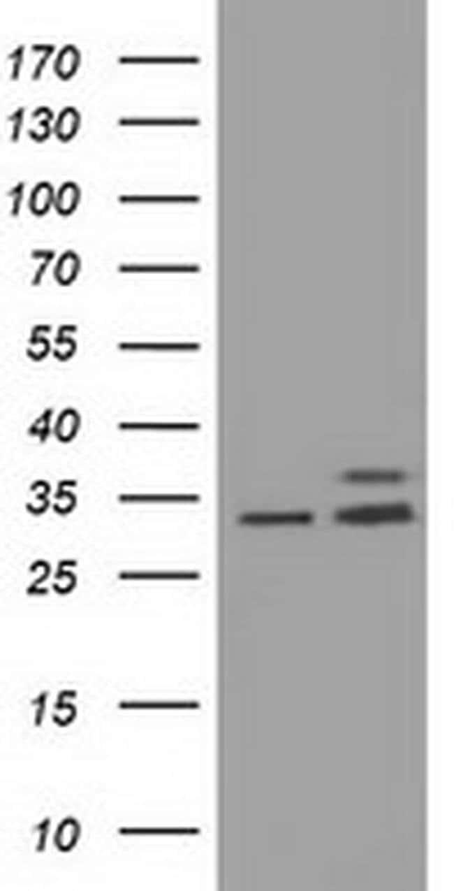 CYB5R3 Mouse anti-Human, Clone: OTI1E3, liquid, TrueMAB  100 µL; Unconjugated