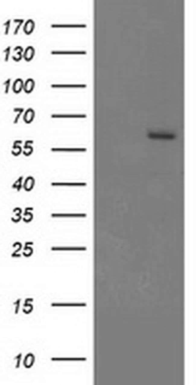 CYP17A1 Mouse anti-Human, Clone: OTI9H4, liquid, TrueMAB  100 µL;