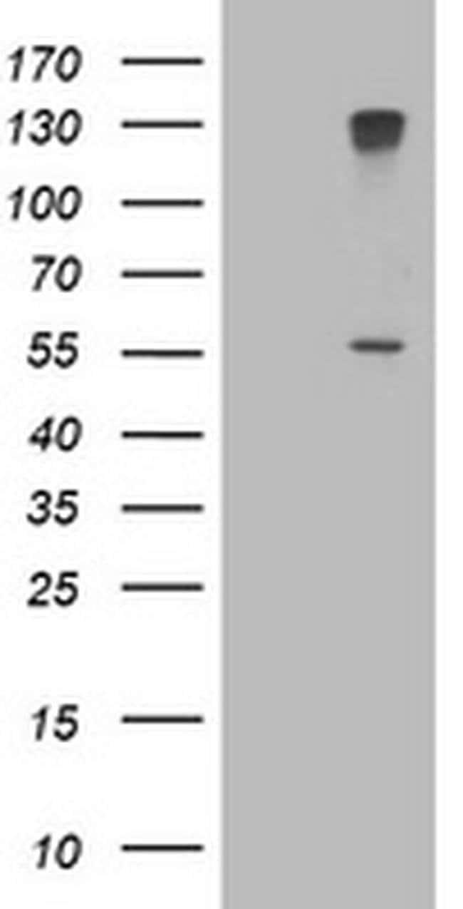 CYP17A1 Mouse anti-Human, Clone: OTI3D9, liquid, TrueMAB  100 µL;