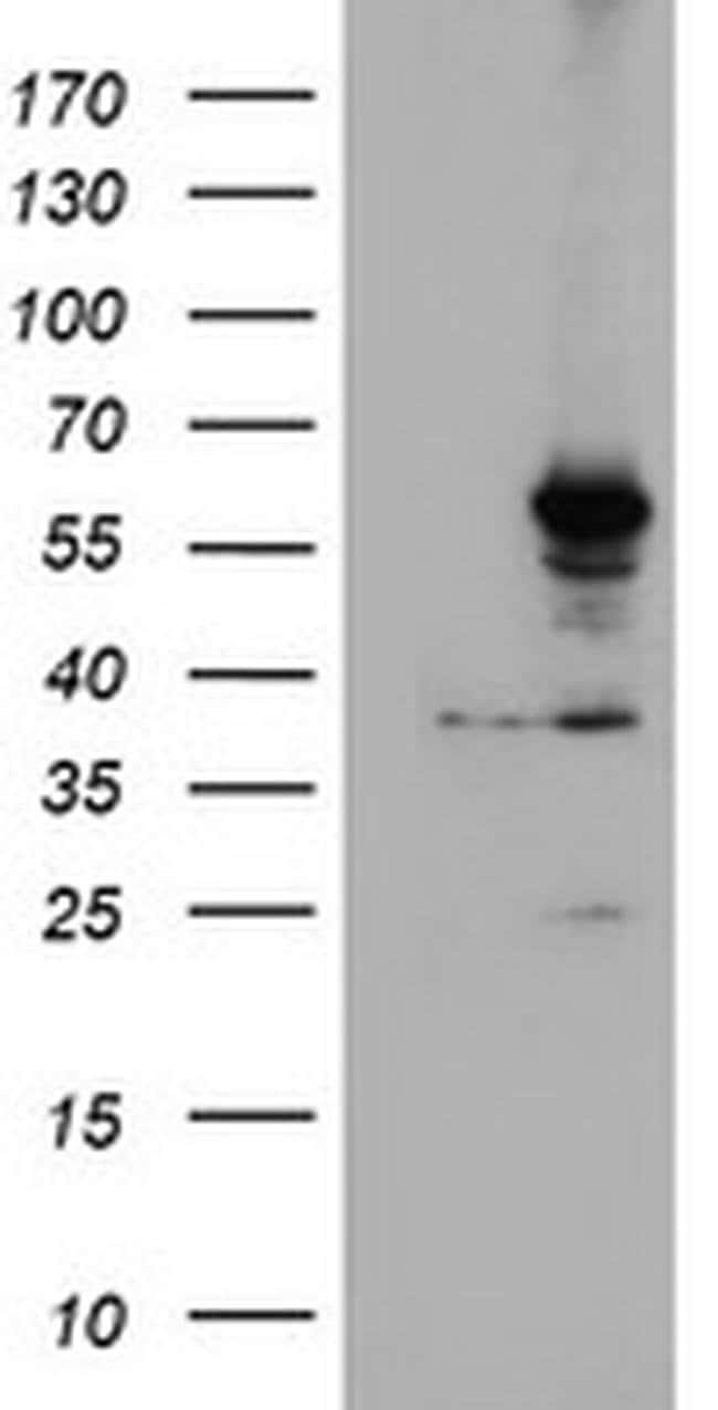 CYP2A6 Mouse anti-Human, Mouse, Clone: OTI1D2, liquid, TrueMAB  100 µL;