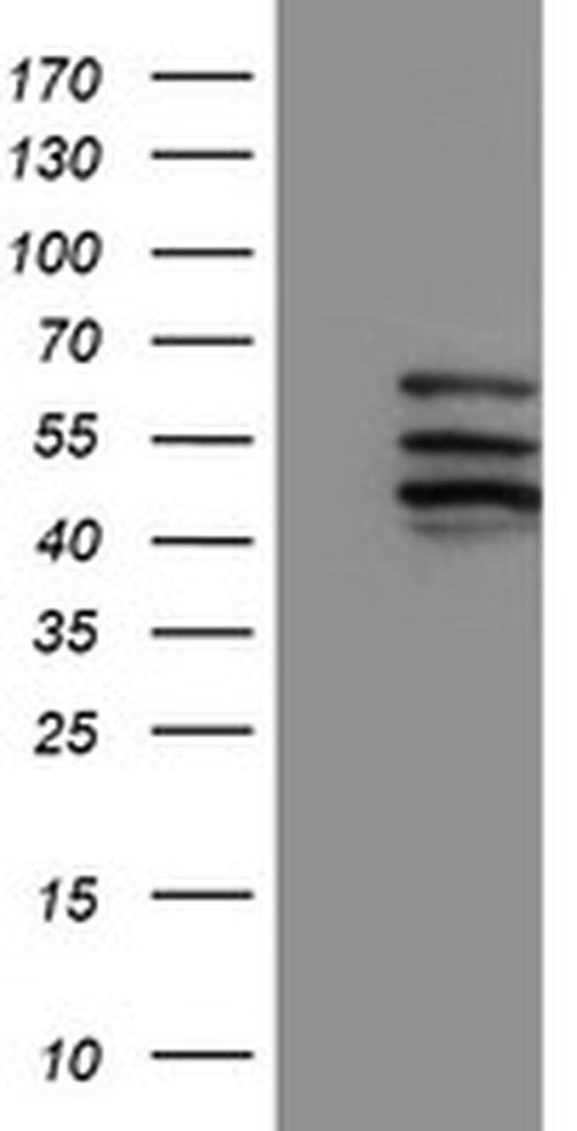 CYP2C9 Mouse anti-Human, Clone: OTI2C8, liquid, TrueMAB  100 µL; Unconjugated