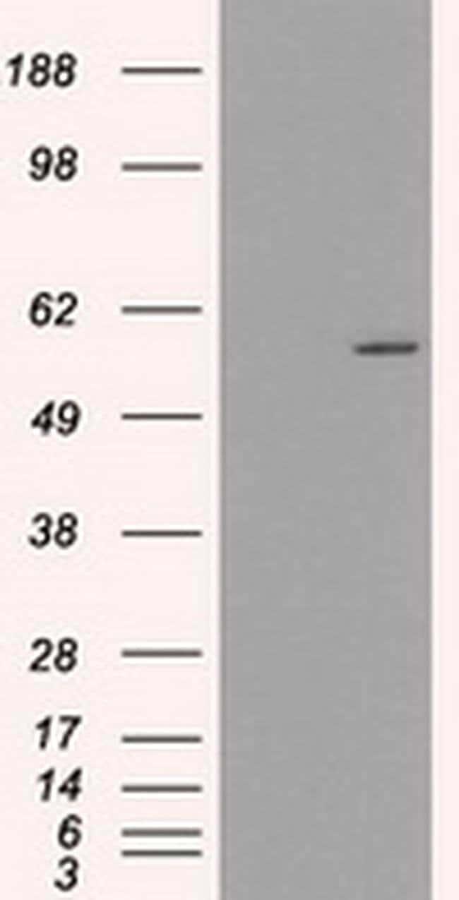 CYP2E1 Mouse anti-Human, Clone: OTI9E6, liquid, TrueMAB  100 µL; Unconjugated