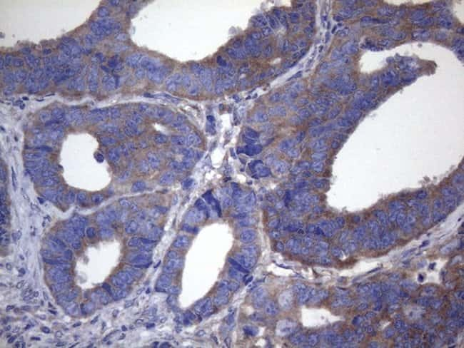 CYTH2 Mouse anti-Human, Clone: OTI4D9, lyophilized, TrueMAB  100 µg;
