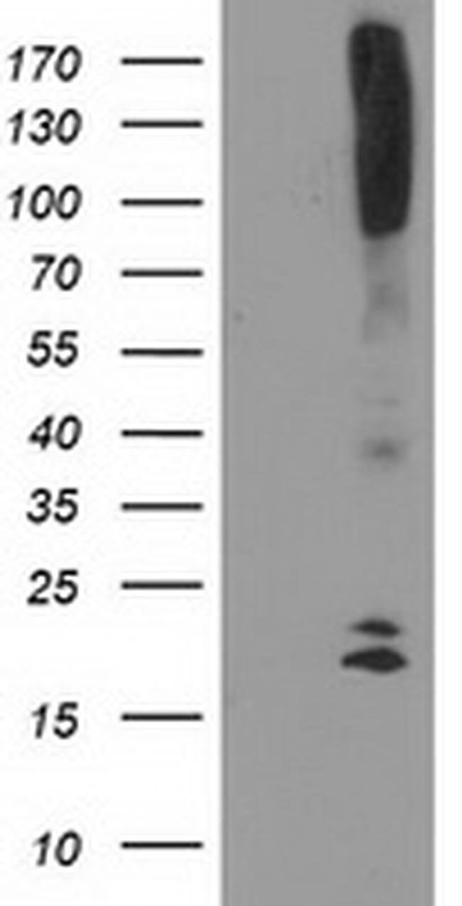 DAND5 Mouse anti-Human, Clone: OTI2H3, liquid, TrueMAB  100 µL; Unconjugated
