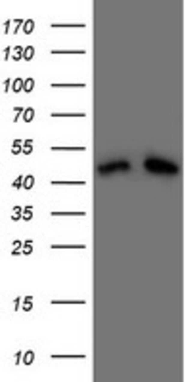 DAP3 Mouse anti-Human, Clone: OTI1A12, lyophilized, TrueMAB  100 µg;